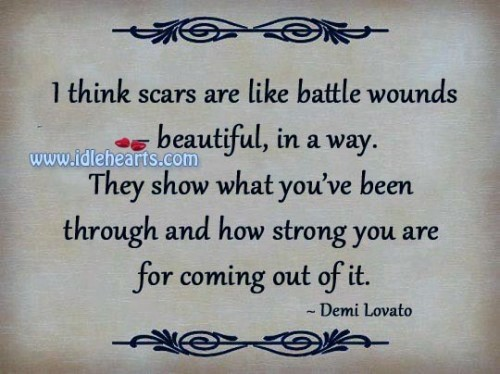 Scars are like battle wounds