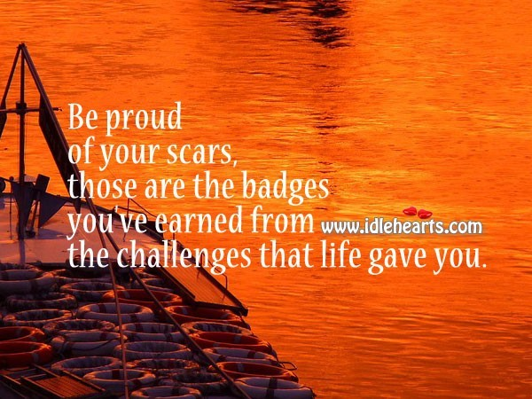 Be proud of your scars those are the badges youve earned from the challenges