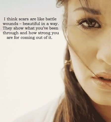 I think scars are like battle wounds beautiful in a way they show what youve been
